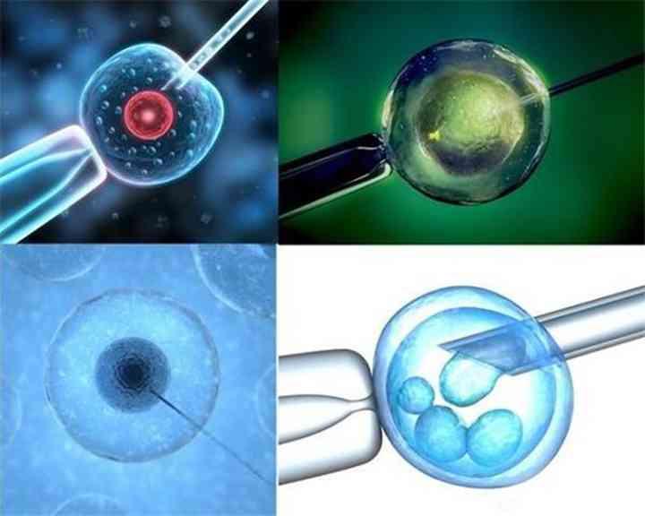 第一、二、三、四代试管婴儿的对比